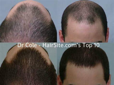 dhi hair transplant reviews hair transplant reviews dr cole hair transplant reviews