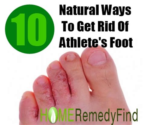 kill athletes foot in shoes kill athlete s foot in shoes 28 images how to get rid