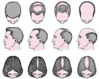 Shoo Dove Untuk Rambut Rontok 14 cara mengatasi rambut rontok secara alami paling uh