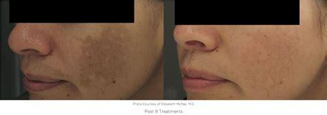 treat redness acne scarring  skin texture  laser
