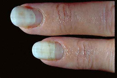 toenail lifting from nail bed onycholysis definition causes symptoms pictures and