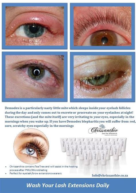 Detox Cleanse Staph Infection by Lash Tip Cleansing Is Important For The Health Of