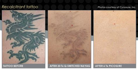 cost of picosure tattoo removal reset room picosure laser removal in soho central