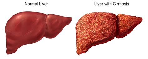 liver disease expectancy liver cancer expectancy jarty
