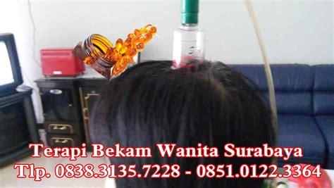 Alat Bekam Khusus Wanita Alat Bekam Kecantikan Wanita Bekam Wanita Profile Pembekam Ahli Bekam Kepala Sidoarjo 0851 0122 3364
