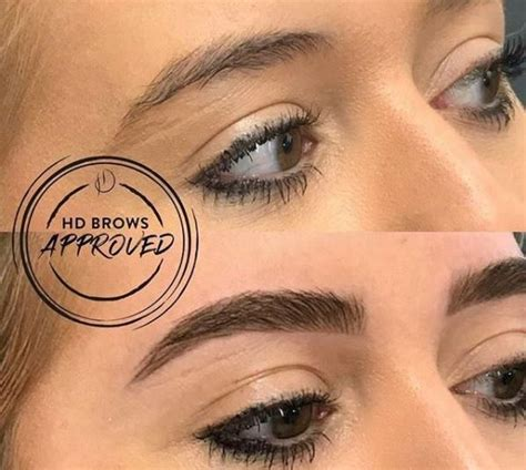 hd brows what are hd brows and what is involved in the treatment