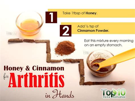 home remedies for arthritis in top 10 home remedies
