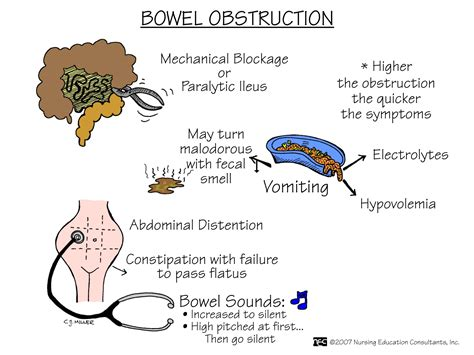 Stool Blockage by Intestinal Obstruction Pdf Depends Diapers Site
