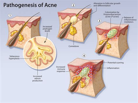 a review of acne in ethnic skin pathogenesis clinical clearing up acne treatment for the primary care physician