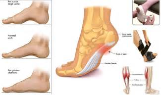 treating plantar fasciitis tools and products to