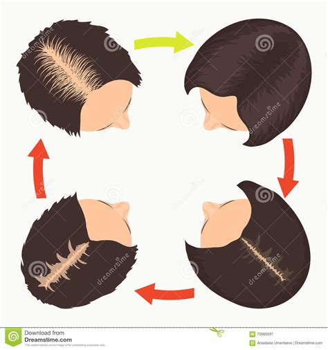 female pattern hair loss stages women hair loss stages royalty free stock photography
