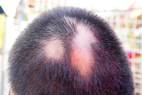 cicatricial pattern hair loss the many causes of hair loss scarring alopecia