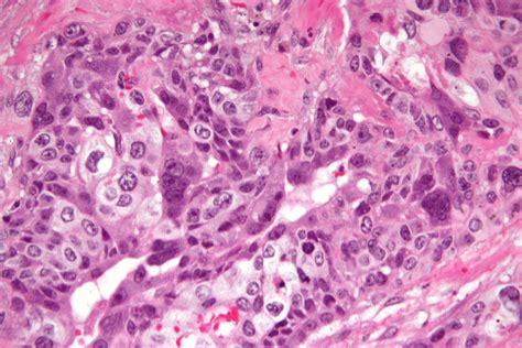 news choriocarcinoma choriocarcinoma wikiwand