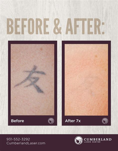 ipl laser tattoo removal 845 best removal skin images on