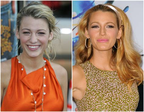 375 best images about celebrity plastic surgery on pinterest best celebrity plastic surgery jobs