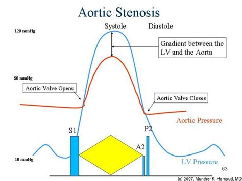 aortic stenosis diagram ppy200 cardiovascular pathophysiology 2008 tufts