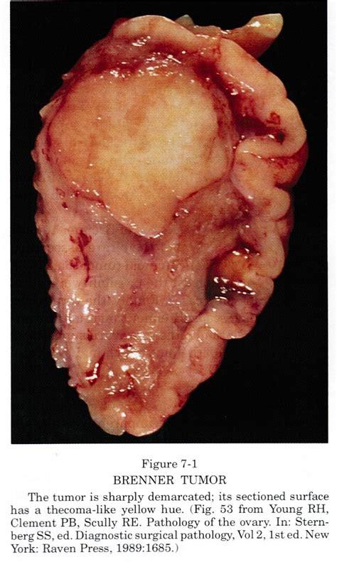 benign tumor on pathology outlines benign brenner tumor