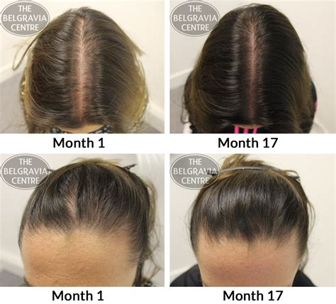 Female Pattern Hair Loss Medscape | androgenetic alopecia female