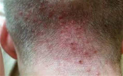 rash red bumps on back of neck pimples on back of head under hair and neck after