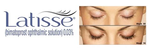 latisse change eye color latisse can change your eye colour