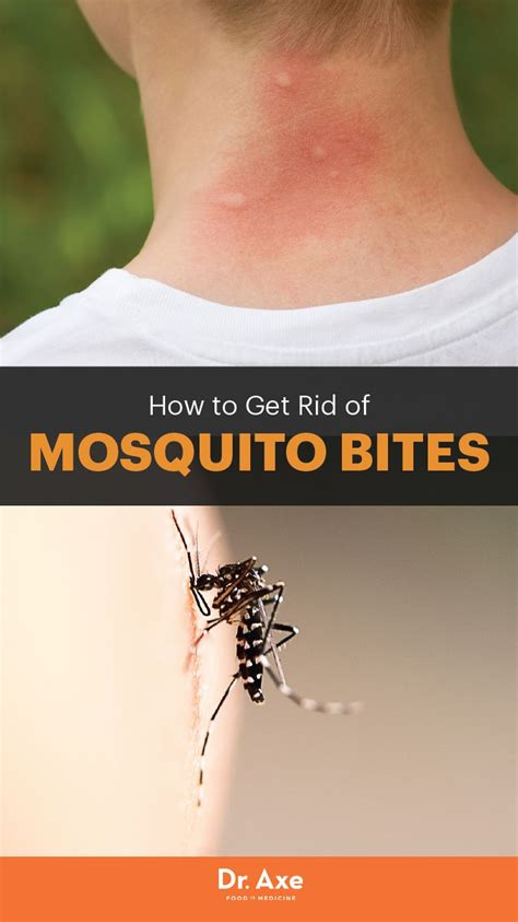 how to get rid of mosquito bites home mosquitoes bites