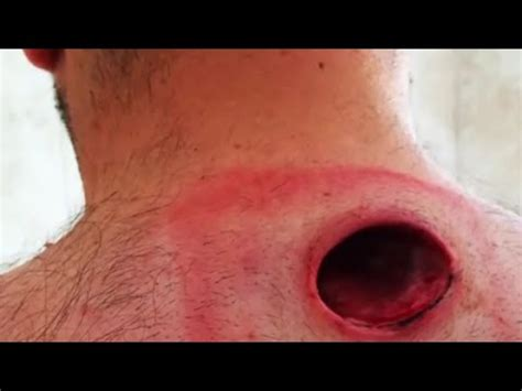 cyst popped cyst pimple pop www pixshark images galleries with a bite