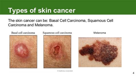 types of cancer pictures different types of skin cancer images