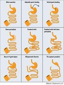 types of gastrectomy