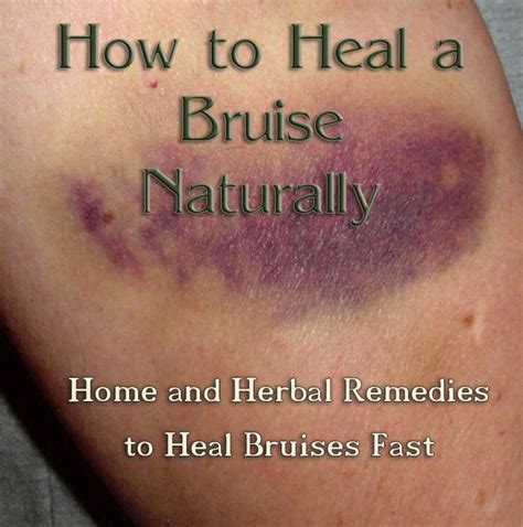 how to heal rug burn fast best 25 bruise remedies ideas on healing bruises medicine for burns and decongestant