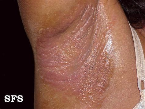 armpit rash causes pictures painful itchy red rash armpit rash red dark itchy painful bumps causes