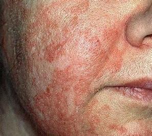 remedios para dermatitis seborreica la ropa para la tratamientos para la dermatitis seborreica parte ii