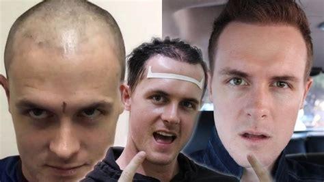 youtube male pattern baldness how i grew my hair back fast male pattern baldness hair