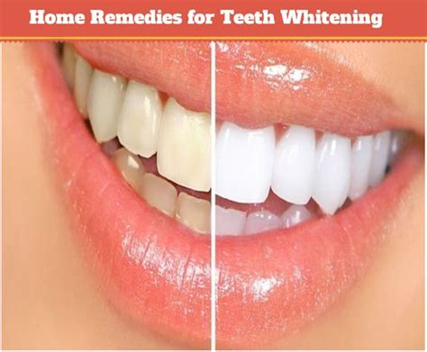 home remedies for teeth whitening health