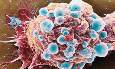 diversi tipi di seno sviluppato nuovo approccio non tossico per la cura di