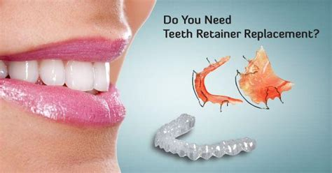 find affordable replacement  teeth retainers
