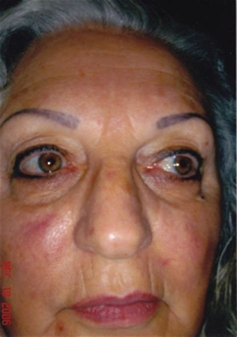 tattoo eyebrows for older women mimo cosmetic tattoos