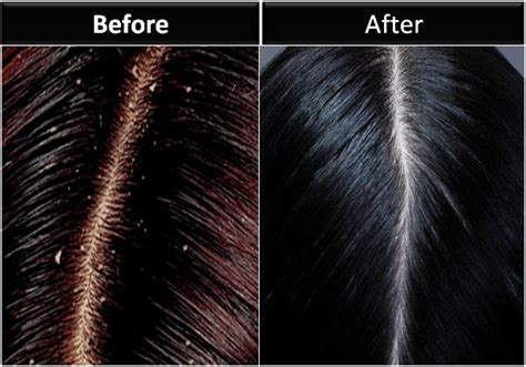 10 proven ways to get rid of dandruff permanently