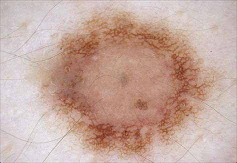 white ring around moles pictures photos