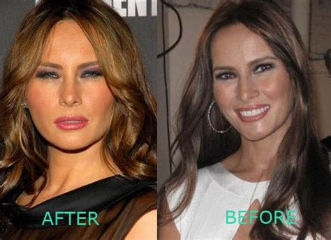 Apartment Floor Plan Ideas by Melania Trump Lay Off The Botox Celebrity Plastic