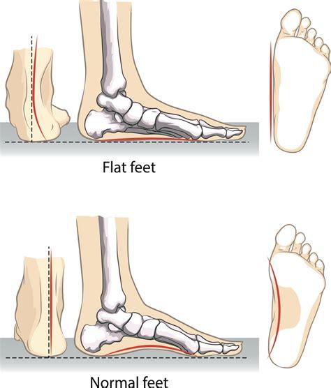 dolore arco plantare interno quando i piedi si dicono piatti