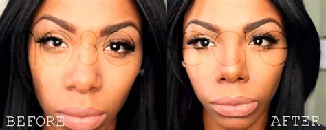 Nose Secret Nose Up 2 non surgical nose before and after nosesecret