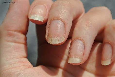 Eczema On Nails Pictures nail eczema gallery