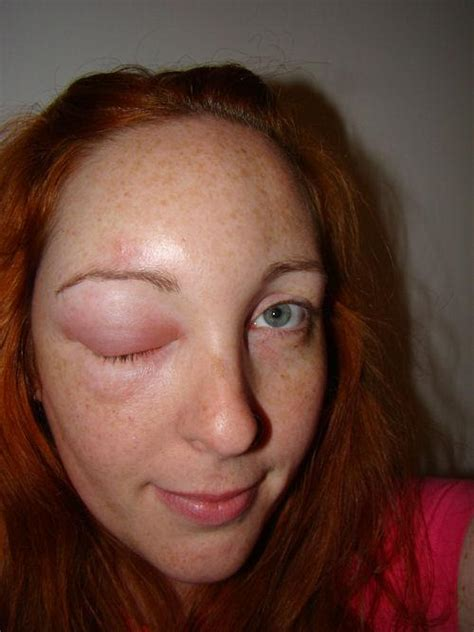 has swollen eye eye swelling eye swelling question and answers firmoo answers
