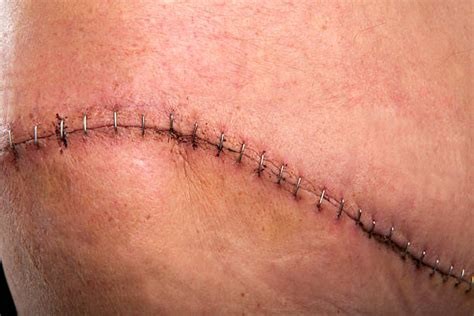 stock images similar to id 108133865 stitches on arm after stitches pictures images and stock photos istock