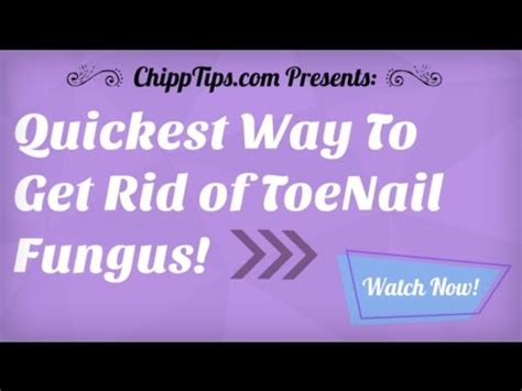 how to get rid of ringworm fast fungal infection 101 how to get rid of toenail fungus at home getting rid of