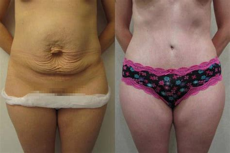 Nhs Tummy Tuck After C Section by 89 Tummy Tuck Nhs After C Section March 2017