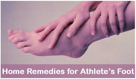 home remedies for athlete s foot