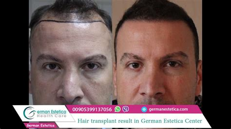 30000 hair graft cost hair transplant cost turkey average cost of hair