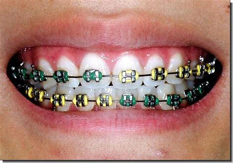 cool colors for braces cool braces images search
