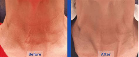 tattoo removal ct 100 laser removal guilford connecticut